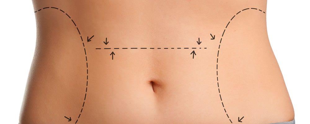 liposuzione senza chirurgia