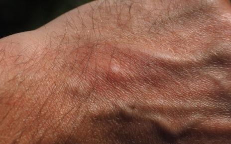 5 oli essenziali contro le zanzare