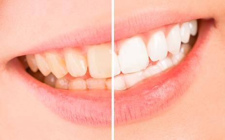 dentista odontoiatra a brescia